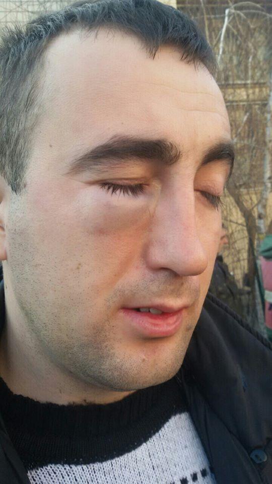 Ветеран АТО сделал замечание чиновнику, за что получил удар в голову
