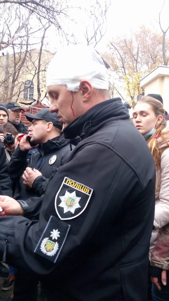 Протесты в Одессе: глава полиции получил ранение в голову