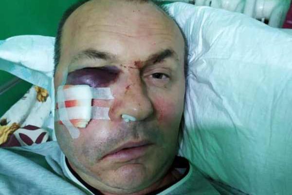 В Одесской области избили начальника УЖКХ