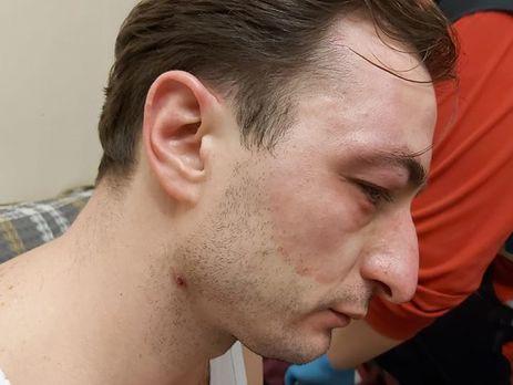 В Киеве напали на главврача института рака