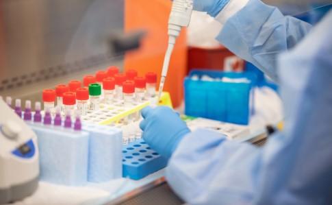 В Украине будут производить тесты для выявления коронавируса