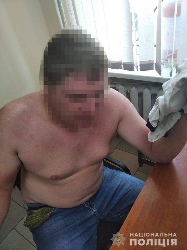В Одесской области пьяный водитель покусал патрульных