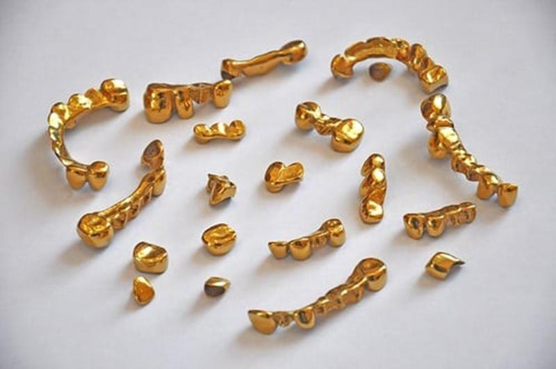 В Костополе стоматолог украл из сейфа золото для протезов пациентов